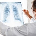 senior-pneumonia-prevention-care