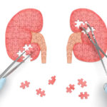 end-stage-renal-causes-symptoms-prevention